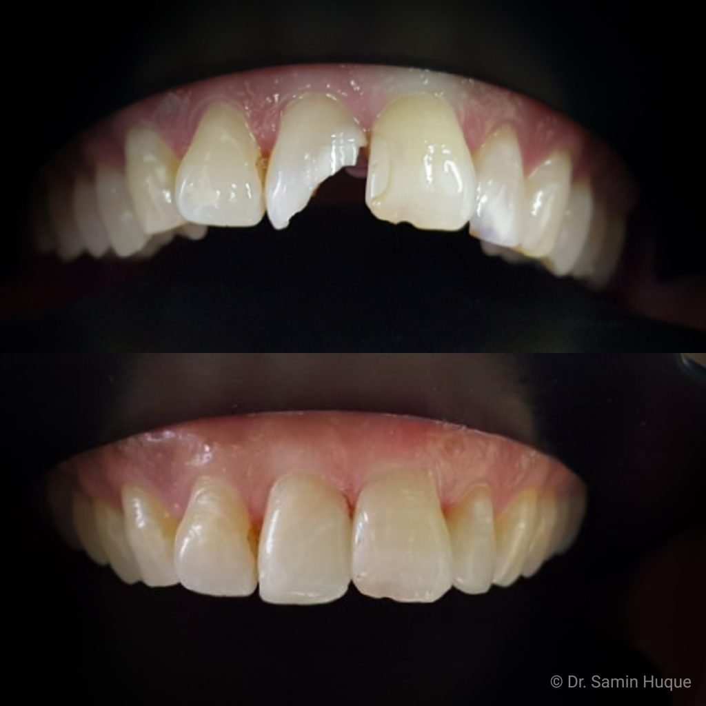 Before and after image of a broken front tooth repaired for patient with a tooth colored filling