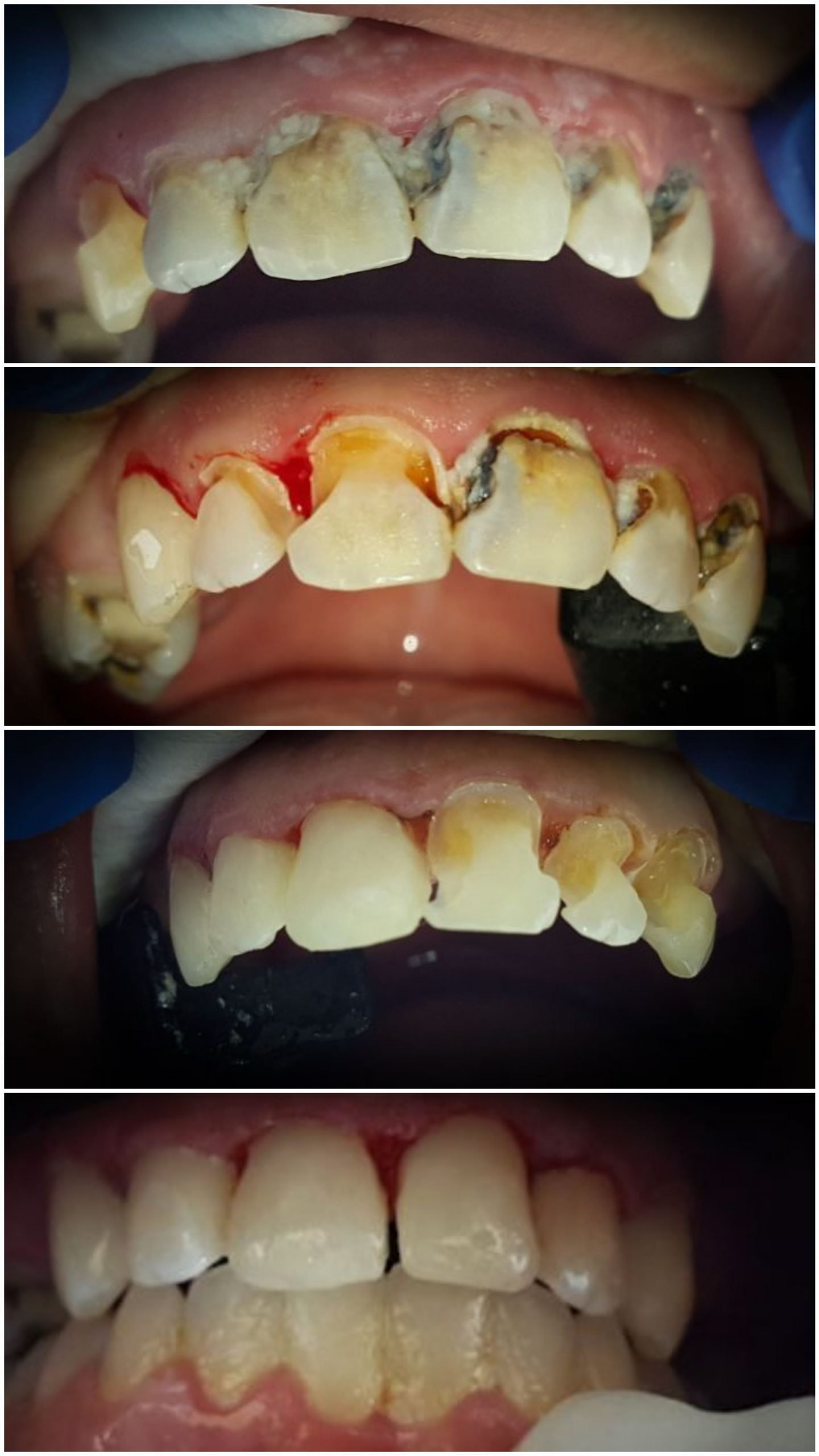 Before, during treatment, and after images of a patient that had decay on all her front teeth that were restored with tooth colored fillings
