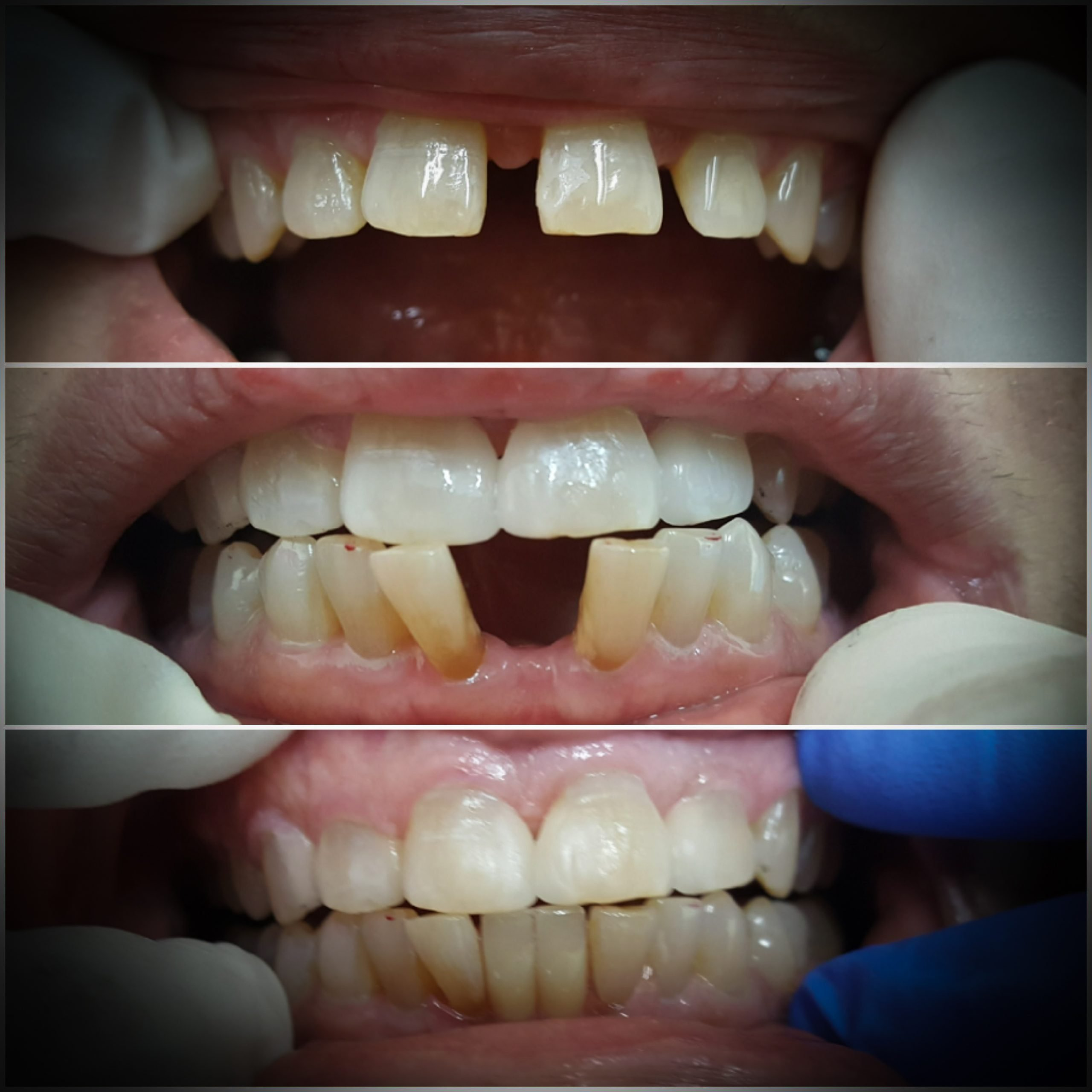 Before and after images for a patient with a gap between her top front teeth and bottom front teeth. After image shows the spacing is closed.